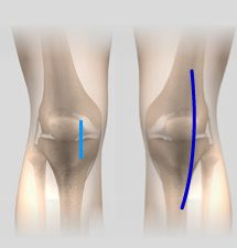 Comparison of Minimally Invasive Knee Surgery and Traditional Knee Surgery Incisions